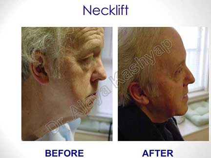 facelift surgery cost in india