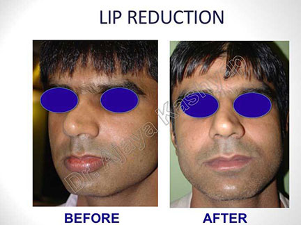 lip reduction surgery in India