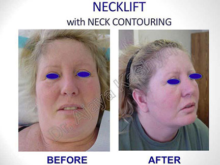 neck lift cost in India