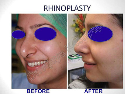 rhinoplasty cost in India