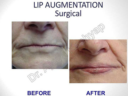 lip augmentation surgery in India