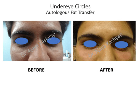 under eye treatment in Delhi