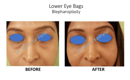 eyelid surgery in Delhi