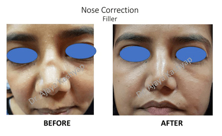 rhinoplasty surgery in Delhi