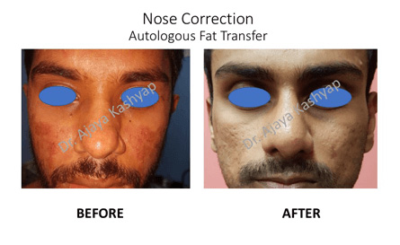 nose surgery in India