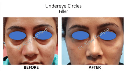 non surgical face lift surgery in India