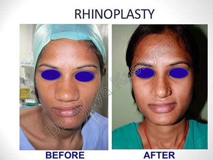 Facelift Surgery In Delhi Best Rhinoplasty Cost In India