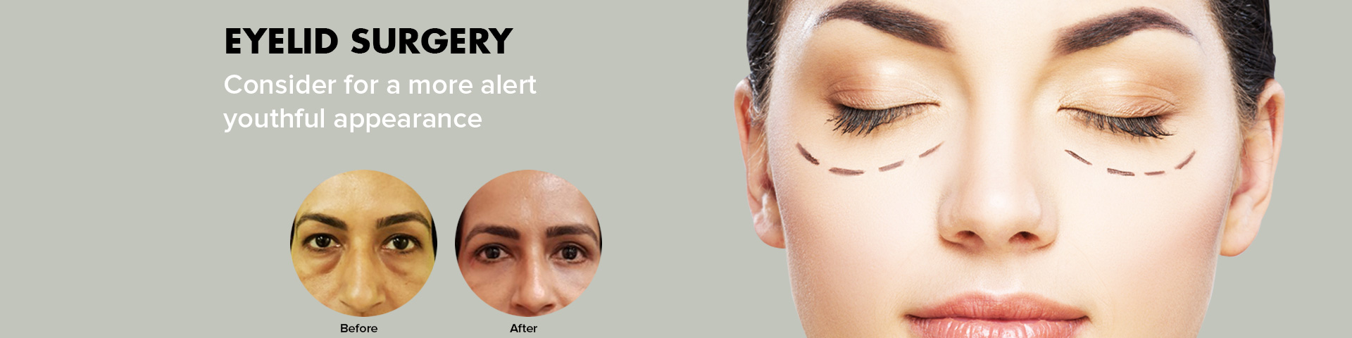 Facelift Surgery in Delhi, Best Rhinoplasty Surgery Cost